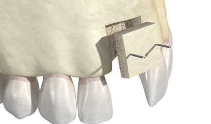 Illustration of block bone graft to prepare mouth for dental implants