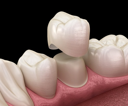 3D model of a dental crown capping a prepared tooth