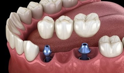 Aniamted dental implant supported fixed bridge placement