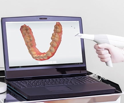 Digital smile impression systems