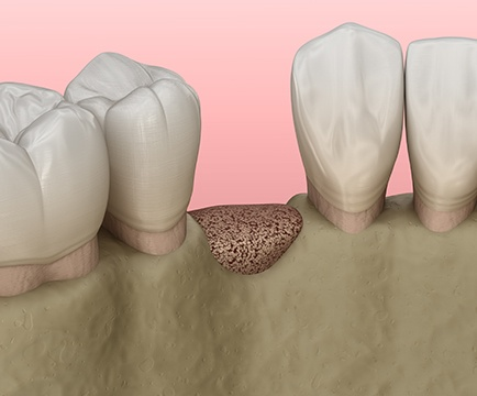Animated smile after bone grafting