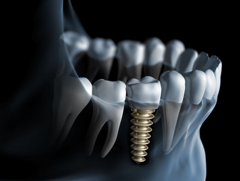 Dental implant in Baltimore